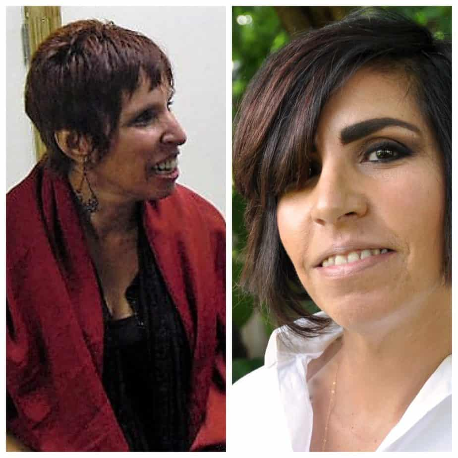 before and after picture Hilda Solares